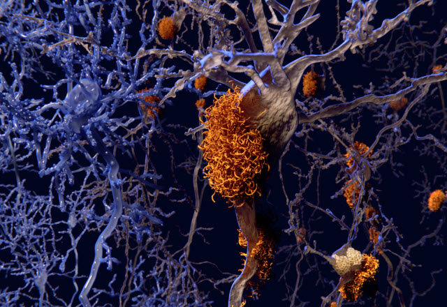 Drawing of neurons affected by plaques of Alzheimer's disease