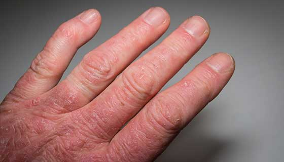 Close up of a person's hand with psoriasis