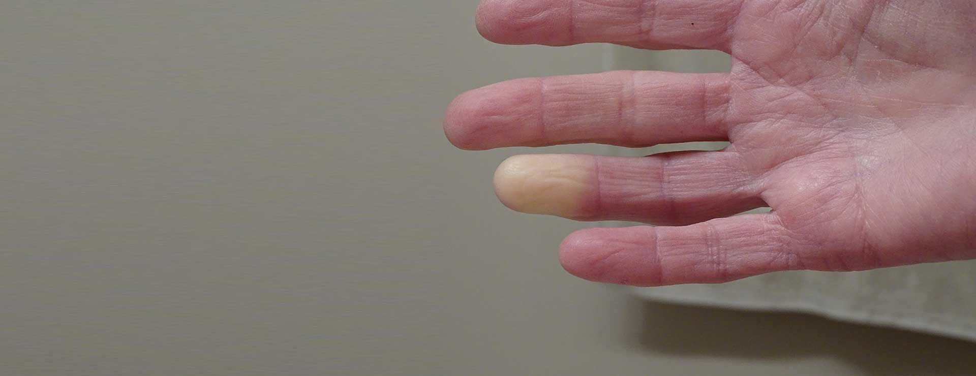 Hand with pale fingertip