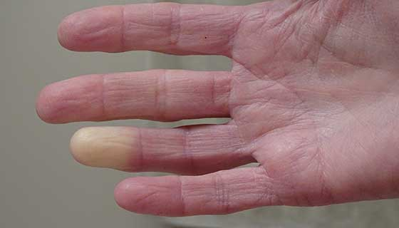 Hand with pale fingertip.