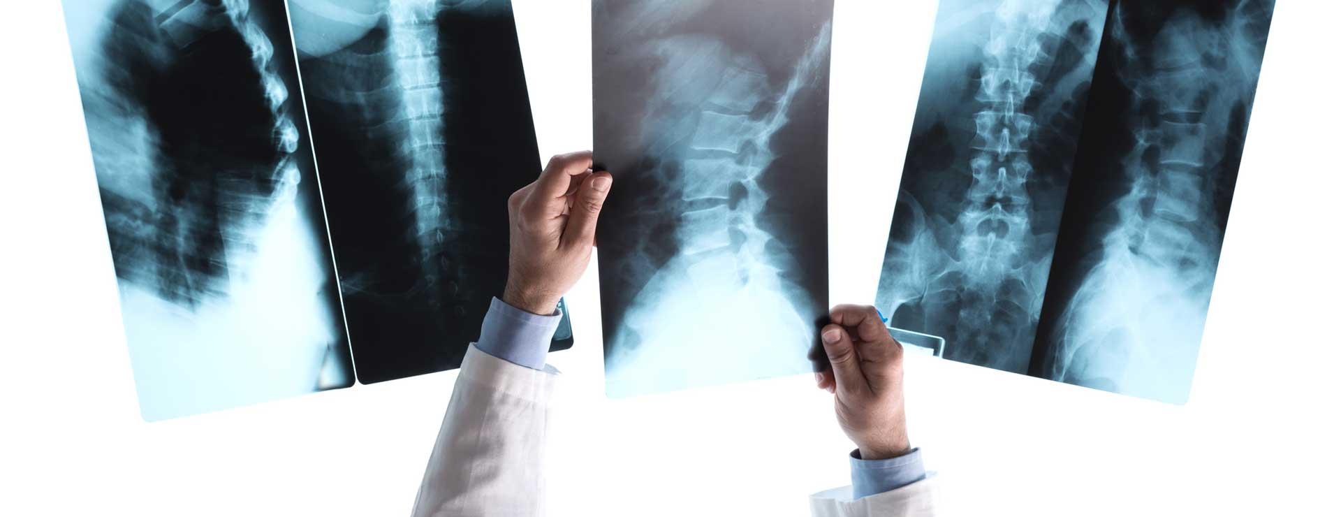 Radiologist checking x-rays