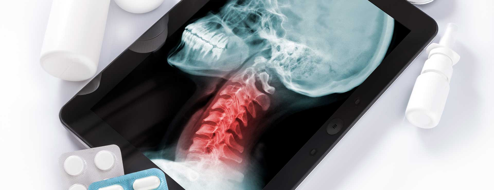 X-ray of a neck displayed on an iPad