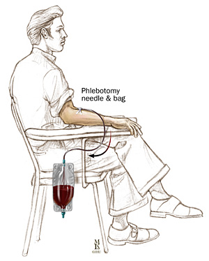 Sketch drawing of man with phlebotomy needle and bag in arm