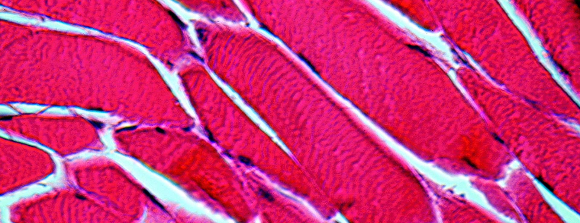 Muscle cells at 1000 times magnification