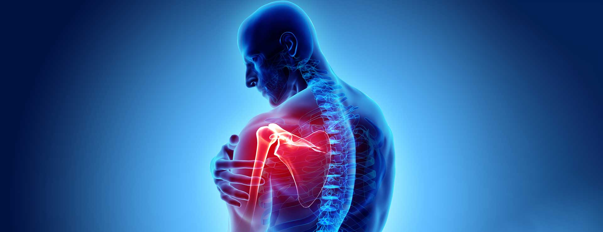 Shoulder Arthritis | Johns Hopkins Medicine