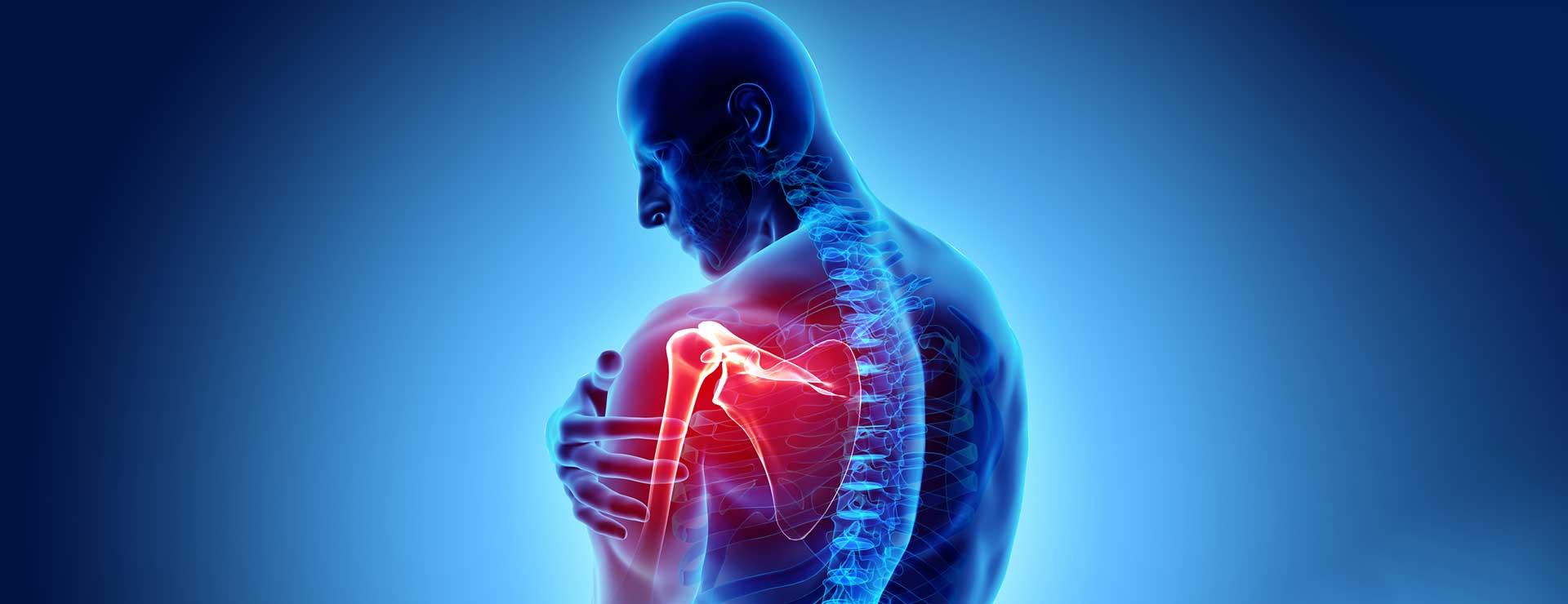 Shoulder Arthritis | Johns Hopkins Medicine