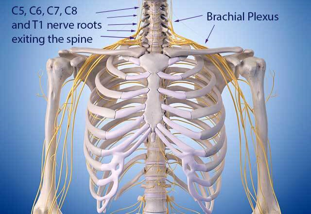 Diagram of the brachial plexus nerve roots in the neck