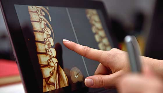closeup of spine on an ipad