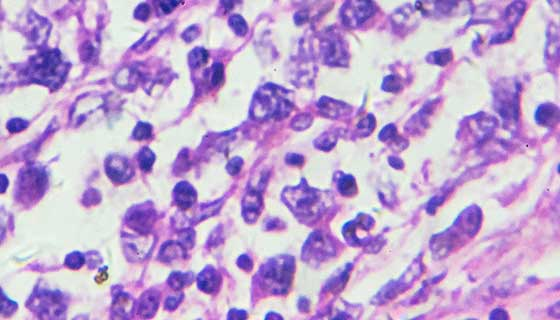 astrocytoma cells seen under microscope