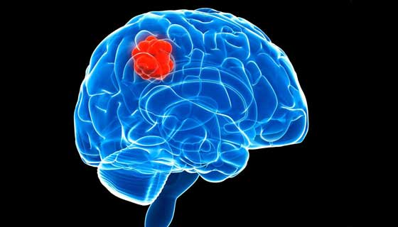 illustration of brain tumor