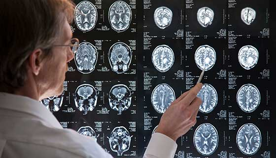 Doctor pointing to a series of brain x-rays