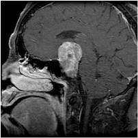 Large pituitary adenoma before surgery seen in MRI
