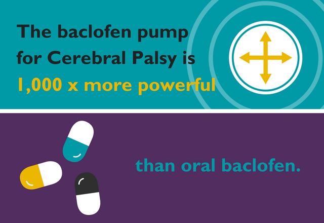 The baclofen pump for cerebral palsy is 1,000 times more powerful than oral baclofen.
