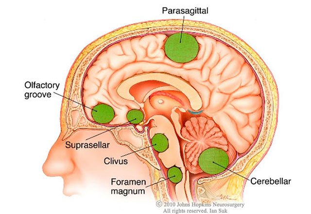 The Most Common Brain Tumor: 5 Things You Should Know