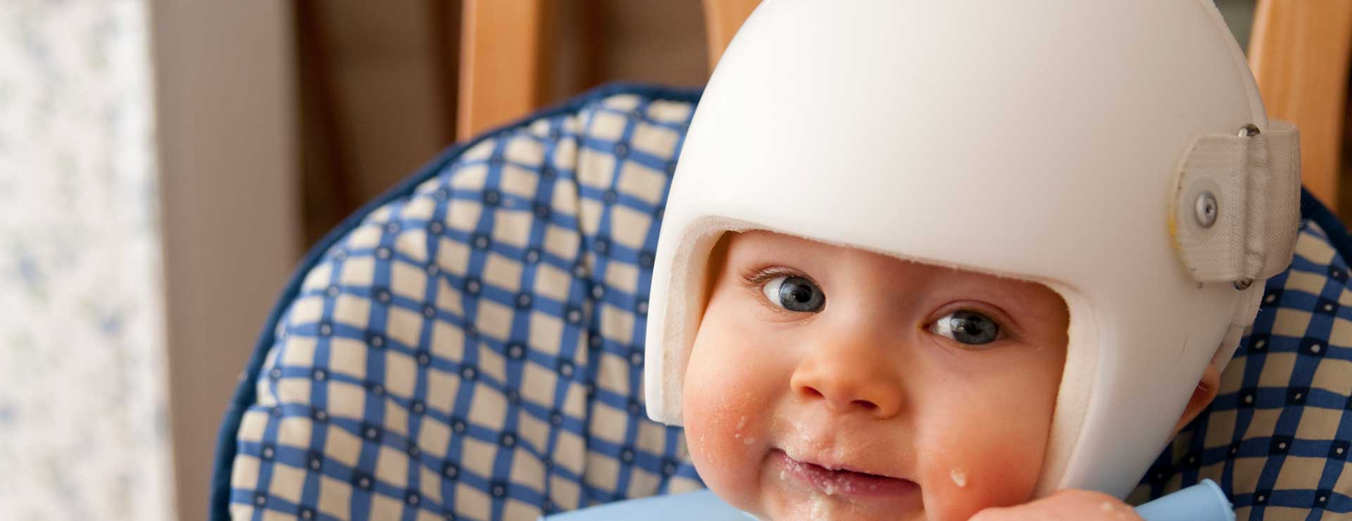 baby with a cranial correction helmet
