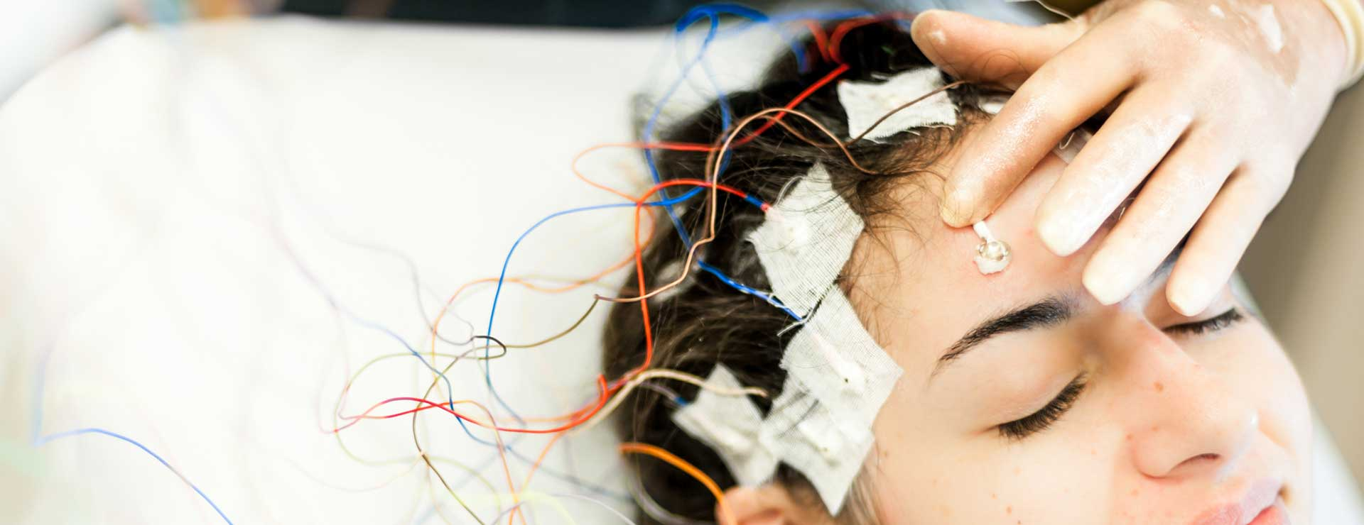 Woman with electrodes on head undergoing wada testing