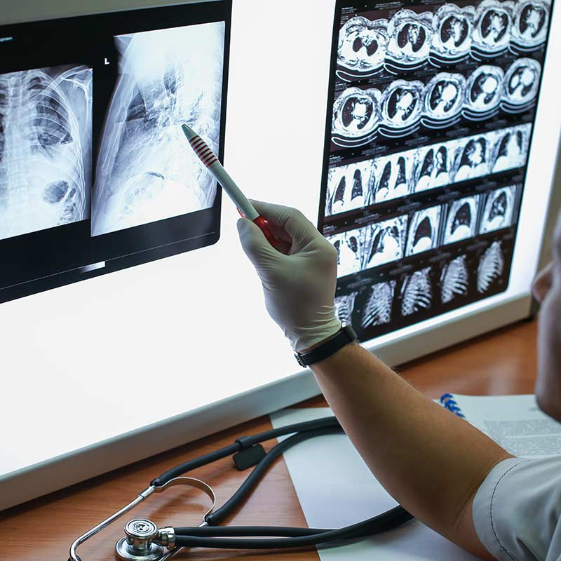 Doctor examines lung X-ray.