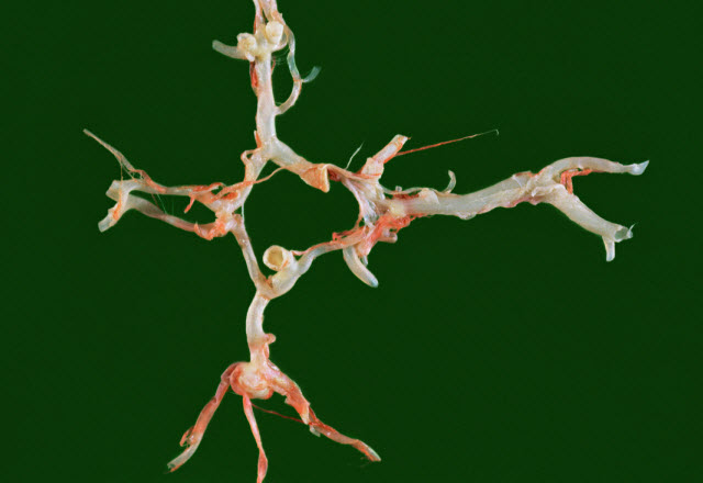 A berry aneurysm is shown in a cadaver specimen.