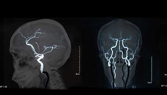 brain blood vessels seen on an angiogram