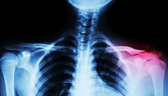 Clavicle Fractures   Johns Hopkins Medicine