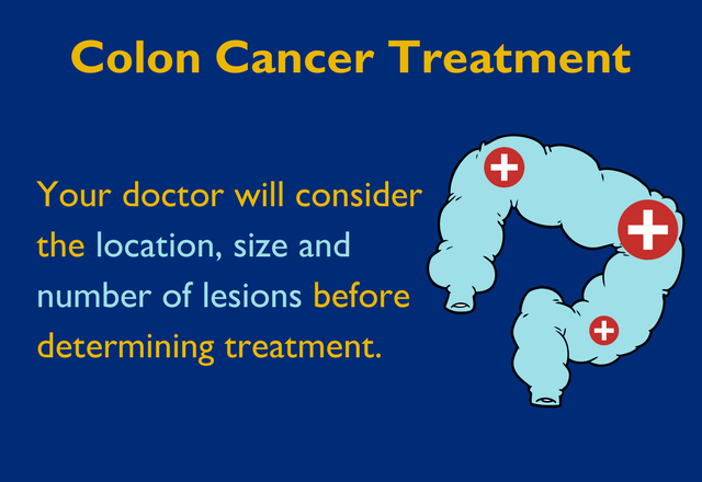 Colon Cancer Treatment: Your Doctor will consider the location, size and number of lesions before determining treatment