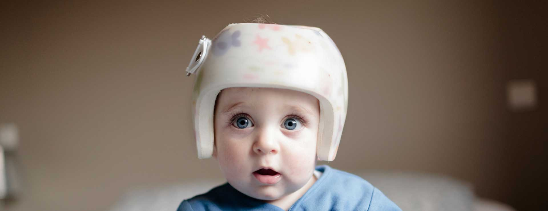 baby in helmet for plagycephaly