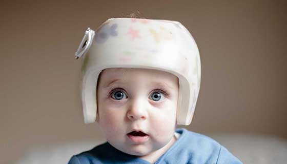baby with helmet for plagycephaly