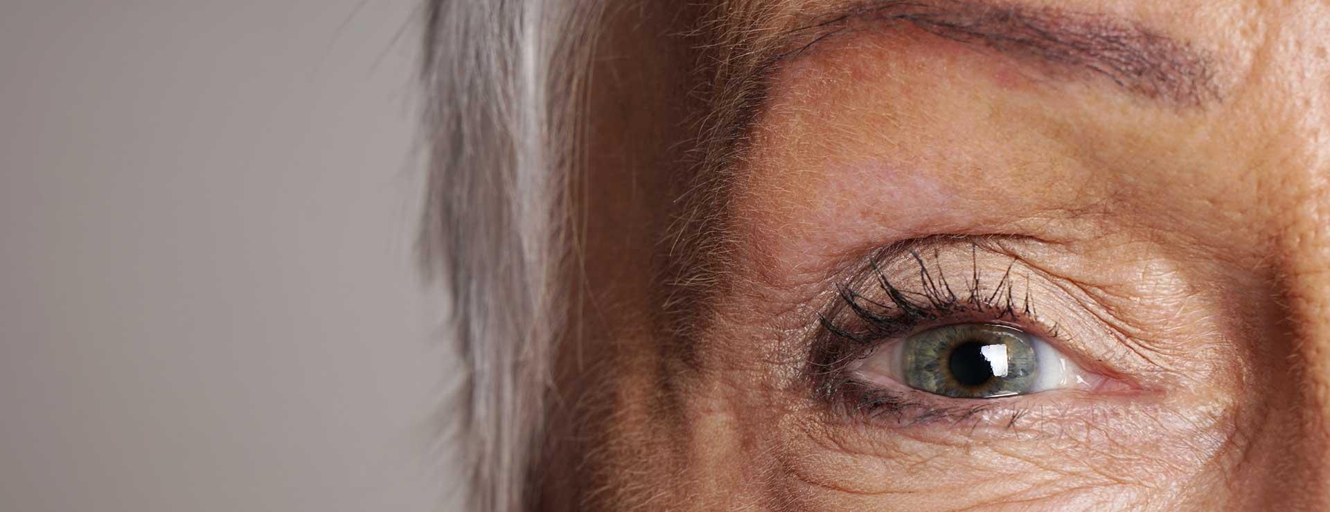 Optic Neuritis   Johns Hopkins Medicine