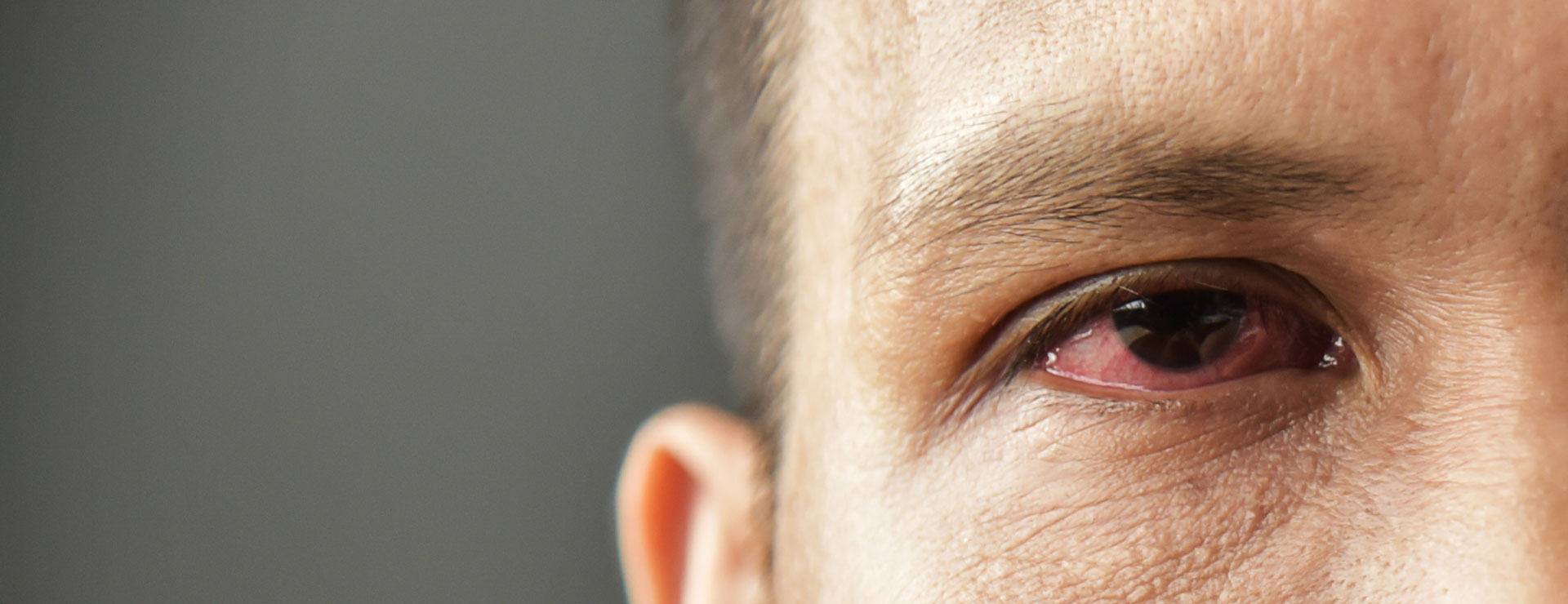 a man with redness in the eye