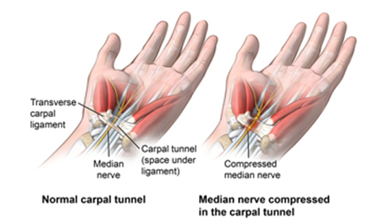 A diagram of a hand and wrist showing carpal tunnel.