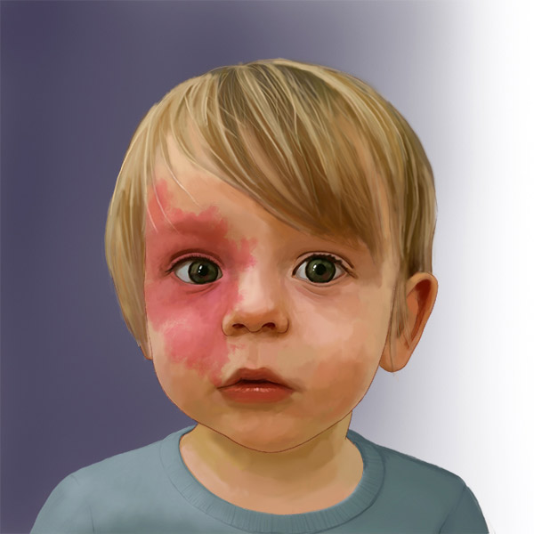 Child with Capillary malformation