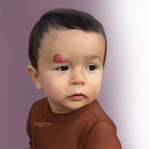 Illustration of a child with an infantile hemangioma above his eye.
