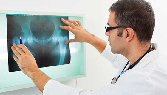 Doctor looking at  x-ray of a patient's hip.
