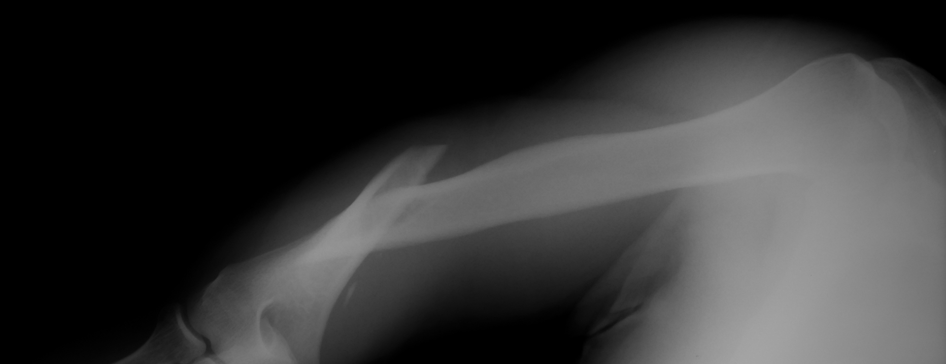 X-ray of a humerus fracture