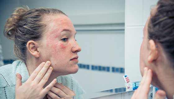 A young woman examines a facial rash in the mirror.