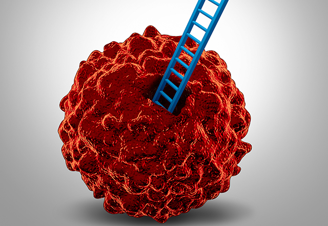 Prostate Cancer Cells on the Move: But Why? | Johns Hopkins Medicine