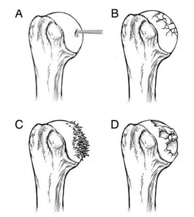Shoulder Arthritis Johns Hopkins Medicine