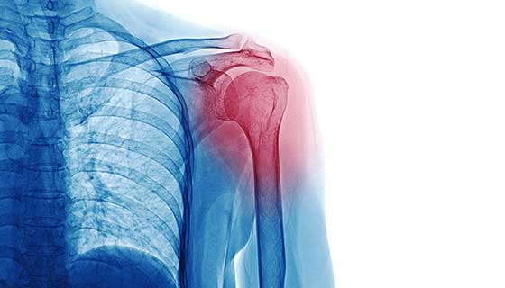 X-ray of the shoulder