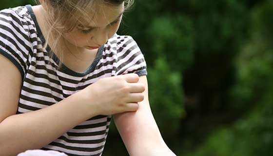 A young girl scratches at a spider bite on her arm.