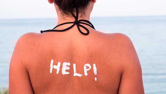 sunburned woman with help written in lotion