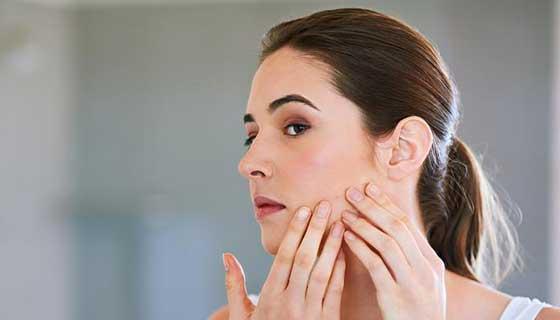 Got Adult Acne Get Answers From An Expert Johns Hopkins Medicine
