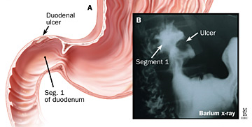 diagram of a duodenal ulcer