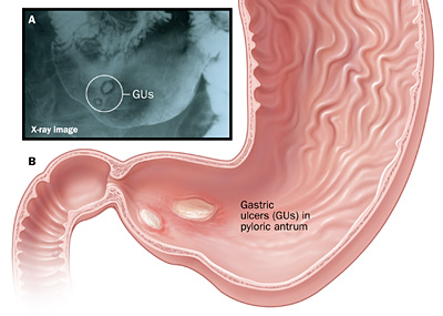 diagram of a gastric ulcer