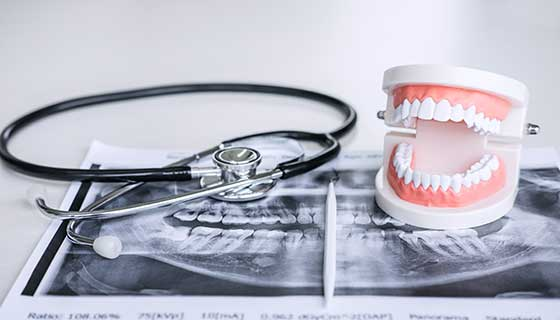 model of teeth and mouth with x-ray sheet