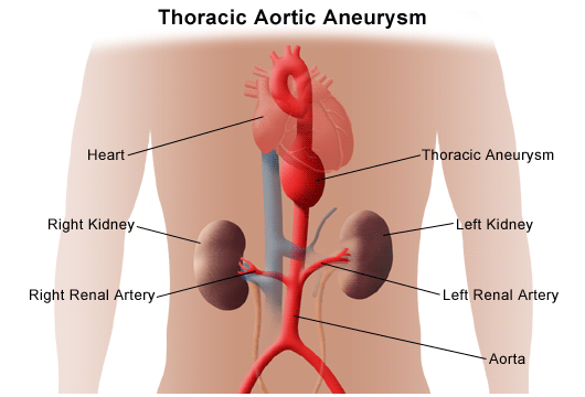 Thoracic Aortic Aneurysm | Johns Hopkins Medicine