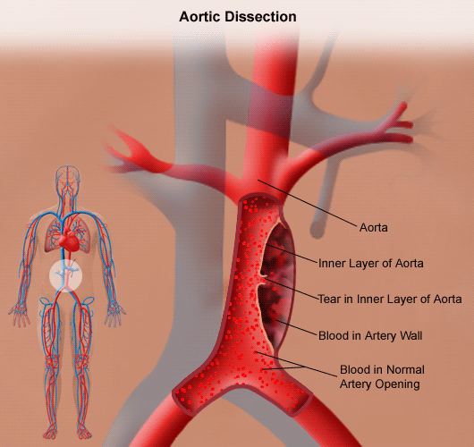 Thoracic Aortic Aneurysm | Johns Hopkins Medicine