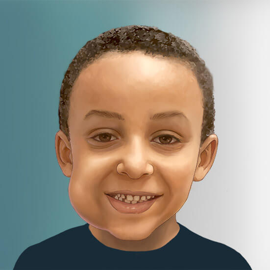Illustration of a child with a lymphatic malformation on his face.