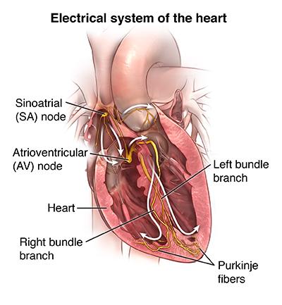 Electrocardiogram   Johns Hopkins Medicine