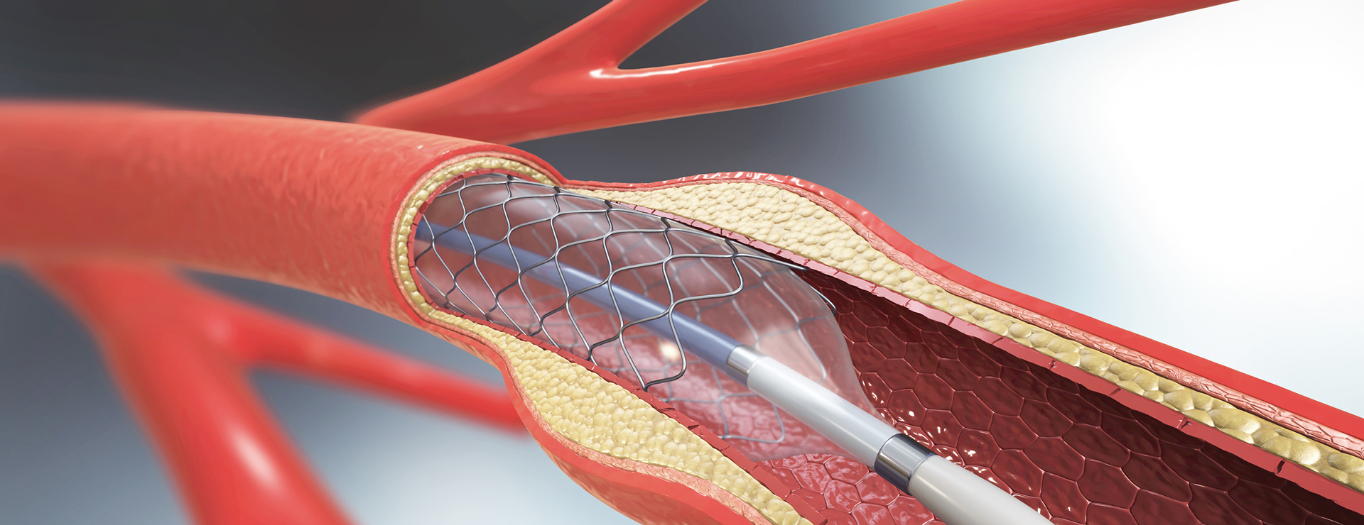 angioplasty heart stent - 3d graphic of stent implant in coronary artery