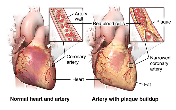 Complications of coronary artery disease